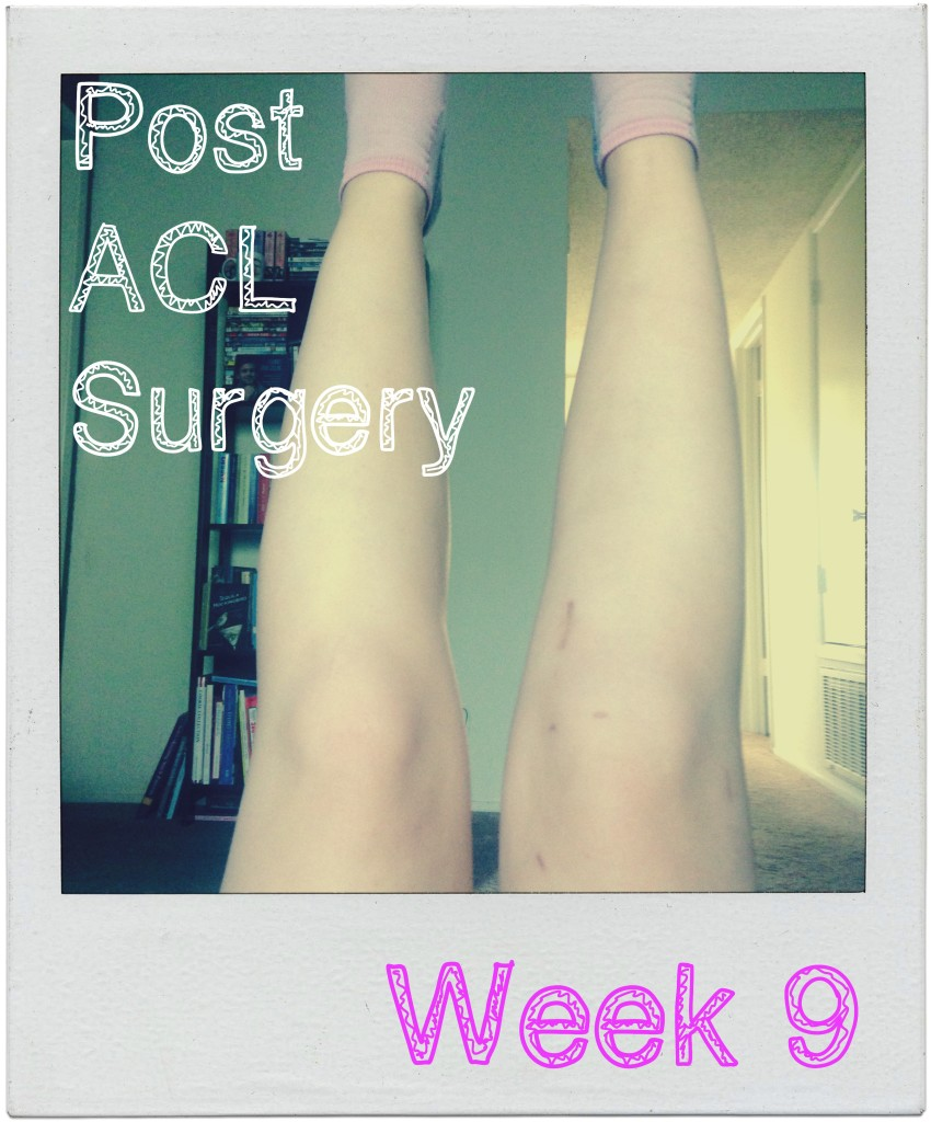 Columbia Physical Therapy >> Post ACL Surgery Week 9 - Traveling Bitz